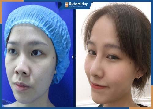 Sau 7 đến 14 tuần mũi hoàn toàn hồi phục và vào form mũi