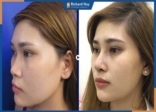 Phương pháp nâng mũi cấu trúc 4D ứng dụng công nghệ hiện đại