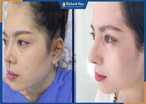 Cải thiện dáng mũi bằng phương pháp nâng mũi tự thân