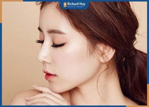 Nâng mũi sụn sườn giúp gương mặt thanh thoát và hài hòa