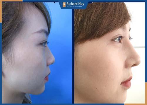 Hình ảnh khách hàng sau phẫu thuật mũi không để lại sẹo