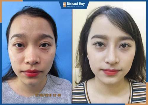 Trụ mũi ngay ngắn sau khi phẫu thuật
