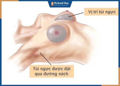 Nâng ngực qua đường nách dễ dàng vị trí khó phát hiện ra phẫu thuật