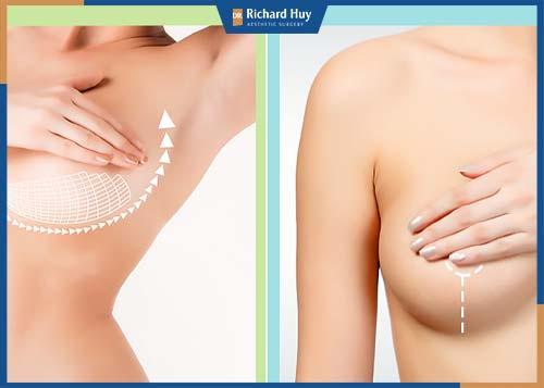 Nâng ngực qua đường quầng vú không kén các loại túi độn