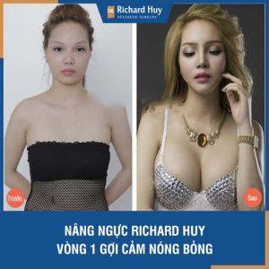 Nâng ngực Dr Richard Huy - Vòng 1 gợi cảm, nóng bỏng