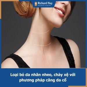 Căng da cổ Dr.Richard Huy - Bí quyết loại bỏ nếp nhăn vùng da cổ hiện đại nhất