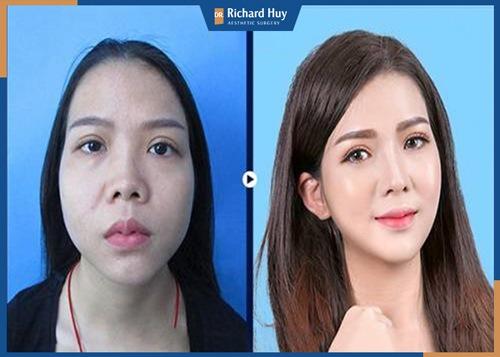 Nâng mũi cấu trúc 4D khắc phục mọi khuyết điểm của mũi