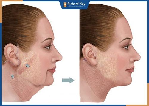 Căng da mặt có nên hay không?