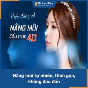 Cải thiện chiều cao chiếc mũi với phương pháp nâng mũi 4D Dr.Richard Huy