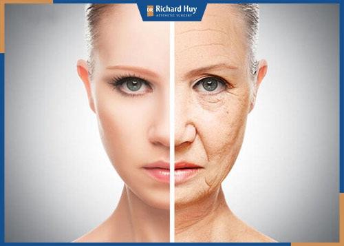 Phương pháp căng da mặt hiệu quả nhất hiện nay