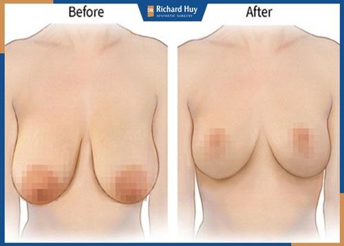 Kết quả đáng mong đợi sau khi treo ngực