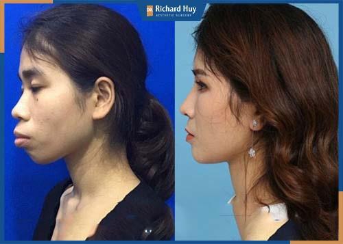 Thay đổi cấu trúc xương hàm, giúp gương mặt hài hòa cân đối