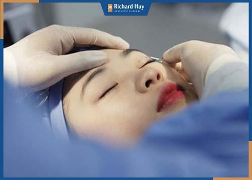 Bác sĩ vẽ định hình khóe mắt