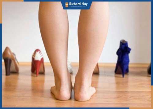 Bắp chân thô, nhiều mỡ