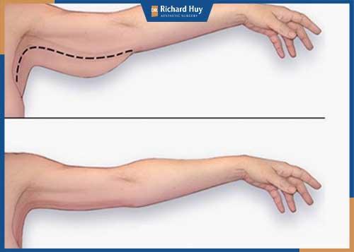 Hình ảnh khách hàng trước và sau khi hút mỡ cánh tay