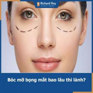 Lấy mỡ bọng mắt bao lâu thì lành? Cách chăm sóc hậu lấy mỡ bọng mắt đúng nhất
