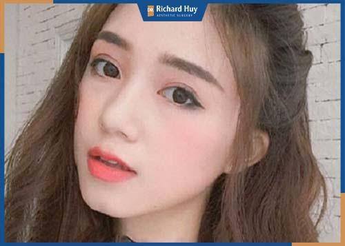 Gương mặt dài, hai góc hàm thọn gọn tạo sự thanh thoát kết hợp với điểm nhấn cằm chẻ giúp gương mặt ưa nhìn, có điểm nhấn.