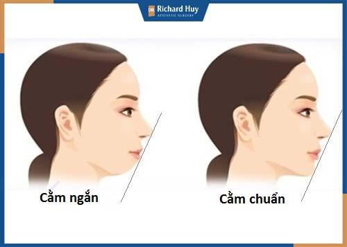 Gương mặt chuẩn cần có đỉnh mũi, chính giữa môi và cằm nằm trên đường thẳng cân đối để biểu lộ cảm xúc dễ dàng