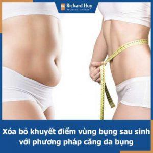Căng da bụng - Giải pháp an toàn, hiệu quả cho phụ nữ sau khi sinh