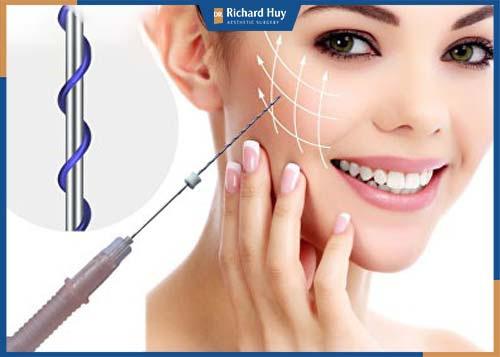 Kỹ thuật khéo léo của bác sĩ bóc tách và xử lý lớp da thừa, nhằm hạn chế sự xâm lấn đến các mô cơ trên gương mặt.