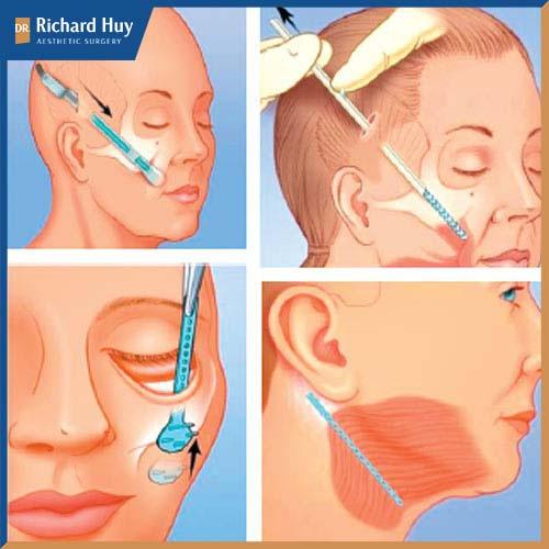 Mô phỏng kỹ thuật căng da mắt nội soi
