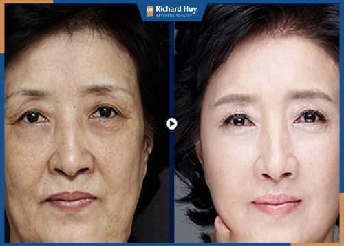 Loại bỏ da mắt thừa chảy xệ, đôi mắt cuốn hút và sắc sảo hơn