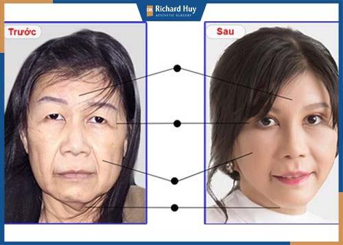 Căng da mặt can thiệp và tác động vào vùng da mặt giải quyết triệt để phần da chùng, da chảy xệ do lão hóa.