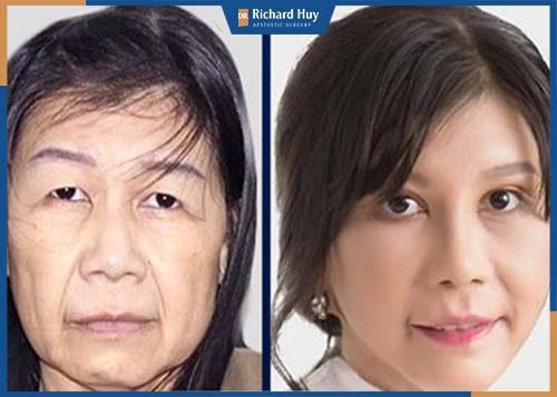 Kéo căng da mặt kéo lại tuổi thanh xuân