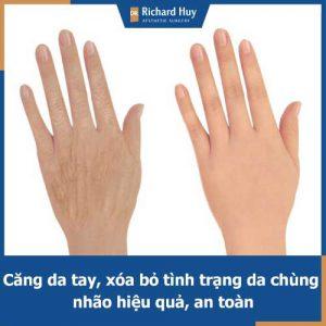 Căng da tay trong vòng 1 nốt nhạc tại Dr.Richard Huy với hiệu quả bền lâu