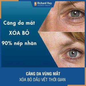 Căng da vùng mắt - Xóa bỏ dấu vết thời gian