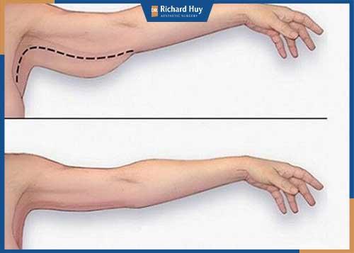Cánh tay thon gọn hơn hẳn sau khi tiến hành phẫu thuật căng da