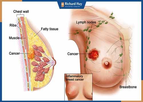 Cắt tuyến vú là phương pháp được sử dụng dành cho người bị ung thư vú