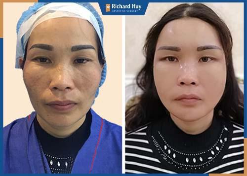 Phương pháp sử dụng mỡ tự thân của cơ thể làm đầy gương mặt