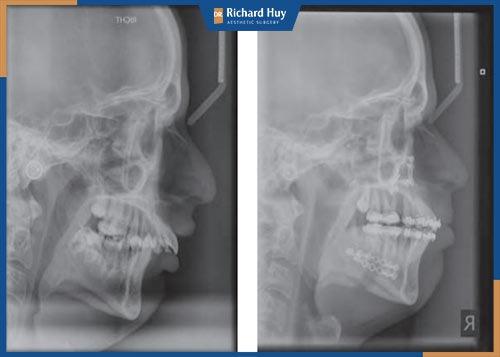 Phẫu thuật chỉnh hình răng hô giá bao nhiêu?