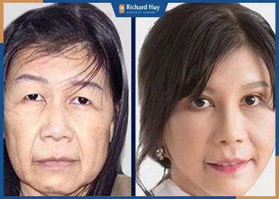 Thẩm mỹ căng da mặt tại Dr.Richrad Huy