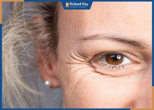 Da mặt bị lão hóa sớm phải làm sao?
