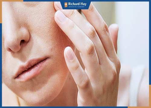 Các cách điều trị lão hóa da mặt