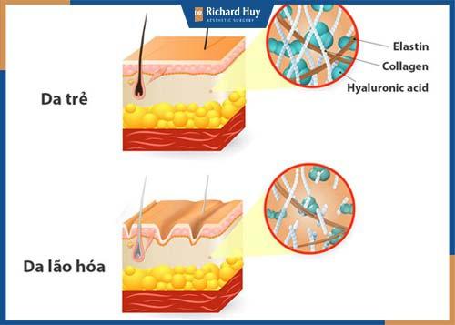 Bước qua độ tuổi 30, khả năng sản sinh collagen bị hạn chế.