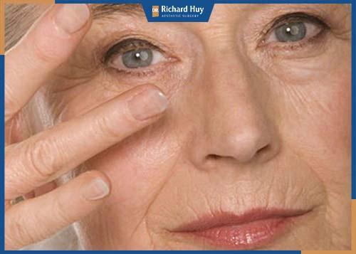 Gương mặt và số đo của cơ thể tăng do lớp mỡ tích tụ, da thiếu sự đàn hồi, cơ mặt bị chùng nhão.