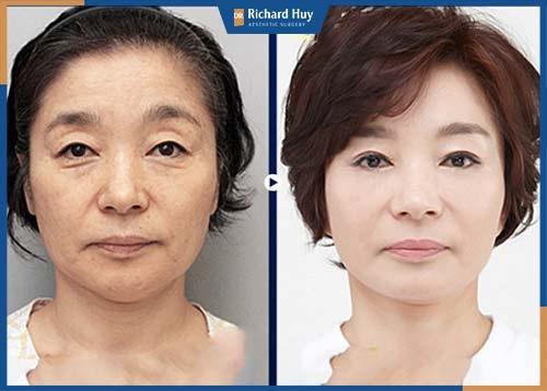 Sau phẫu thuật, cấu trúc bề mặt da được thay đổi và tăng cường sản sinh ra lượng collagen cần thiết cho làn da.