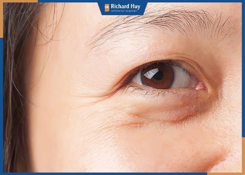 Lấy mỡ mắt dưới bao lâu lành?