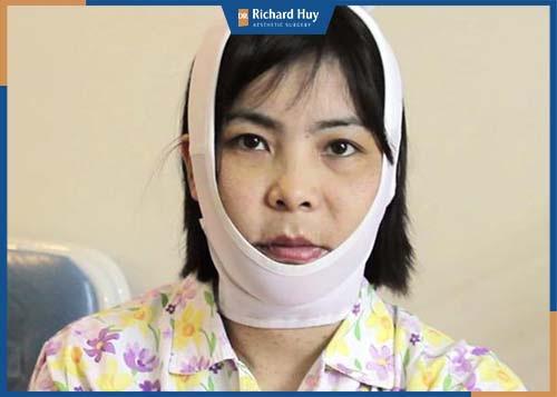 Khách hàng cố định cằm và giảm sưng sau 5 ngày phẫu thuật