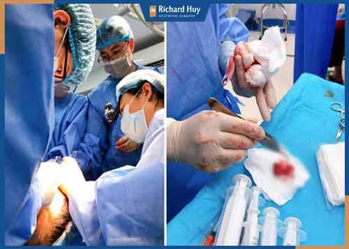 Bác sĩ Richard Huy tiến hành phẫu thuật căng thẳng