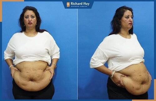 Người thừa cân béo phì lâu năm