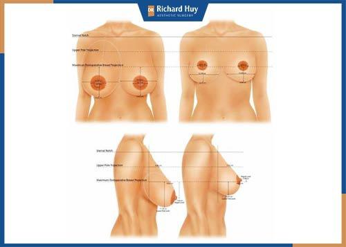 Thu ngực thon gọn có nguy hiểm không?