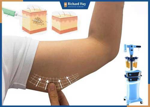 Loại bỏ mỡ thừa bắp tay với phương pháp hút mỡ bắp tay