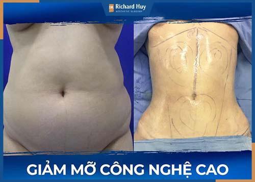 Hút mỡ bụng công nghệ cao cùng Dr. Richard Huy không gây đau đớn