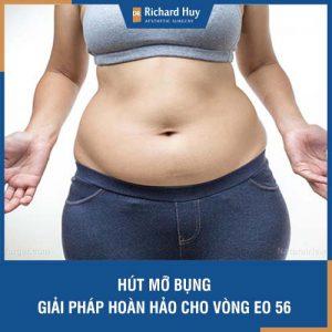 Hút mỡ bụng - Giải pháp hoàn hảo cho vòng eo 56