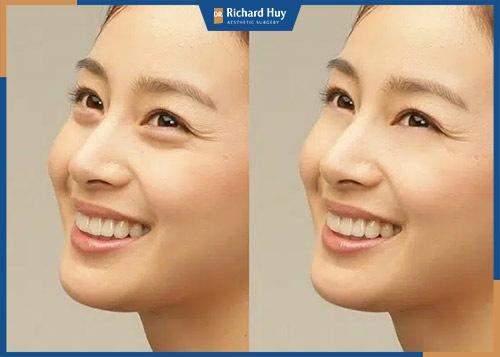 Bóc mỡ mắt duy trì được bao lâu?