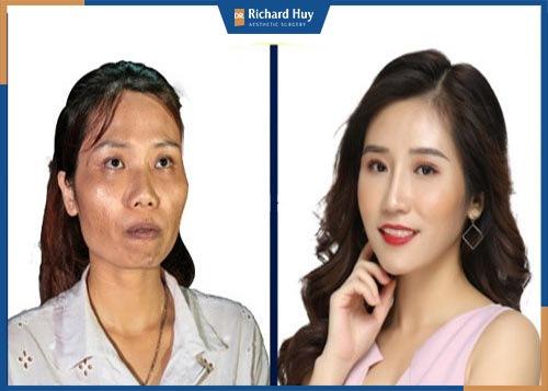 Hình ảnh khách hàng với khuôn mặt cân đối hơn sau khi làm đầy thái dương